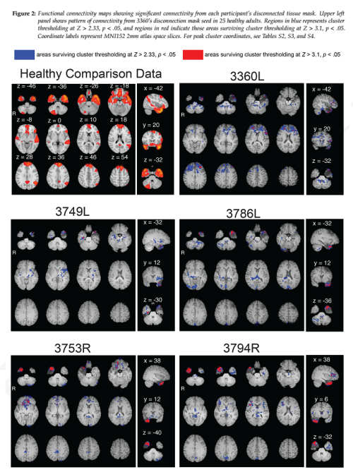 fmri_disconnected_warren